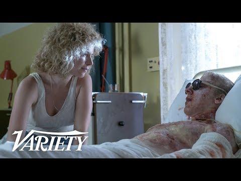 How HBO's 'Chernobyl' Recreated the Horrific Radiation Burns